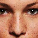 راههای درمان کک و مک صورت