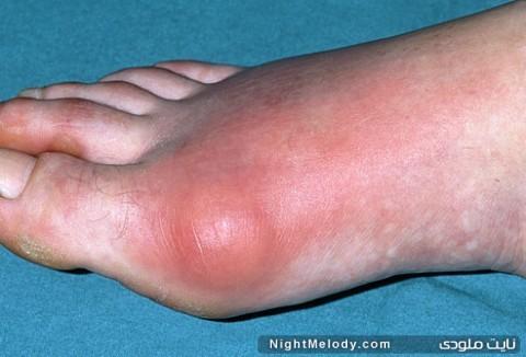 بیماری نقرس