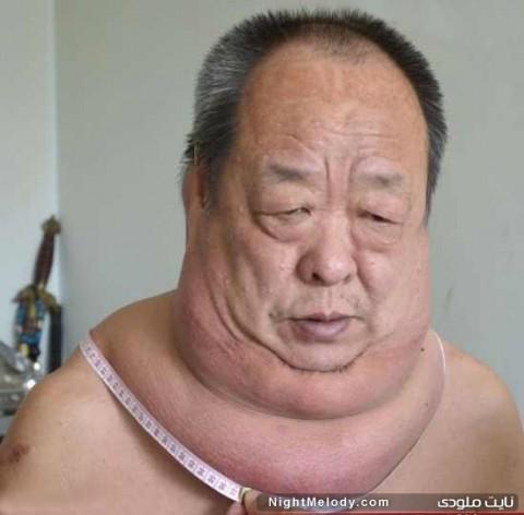 مردی عجیب که پهن ترین گردن جهان را دارد + تصاویر