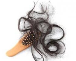 ar4 1629 250x200 ۹ دلیل ریزش مو و روش های درمان آنها