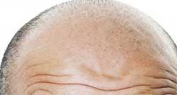 شایع ترن علل ریزش مو در مردان و زنان چیست؟