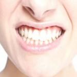 دندانهایی که آرام و قرار ندارند
