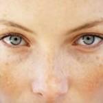 درمان های خانگی برای از بین بردن کک و مک