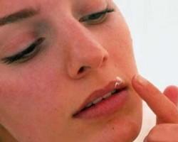 ۳ نسخه ی طلایی برای درمان تبخال