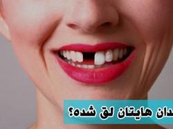 آیا دندان لق قابل درمان است؟