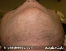 درمان پُرمویی در خانم ها