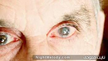 بیماری گلوکوم : وقتی فشار چشم بالا می رود
