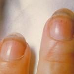 آشنایی با بیماری تری کیوریازیس یا تریشینوز