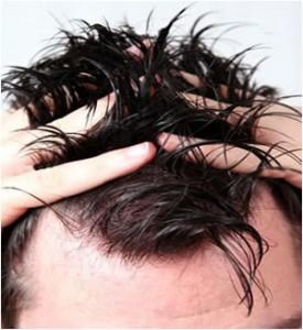 موهای چرب