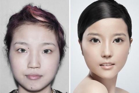 عکس های جراحی پلاستیک قبل و بعد از عمل