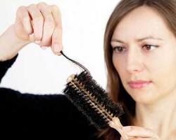 علل ریزش مو در زنان باردار و درمان آن