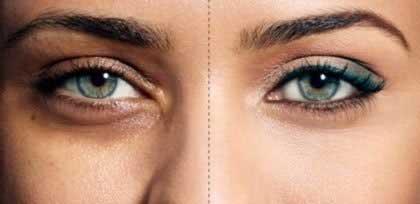 علل تیرگی دور چشم و درمان آن