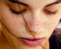 پنج روش برای از بین بردن لک های پوست