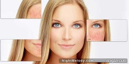 7 نکته برای مراقبت از پوست مبتلا به روزاسه