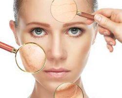 6 سم تخریب کننده پوست