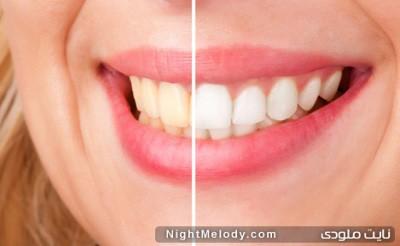 جرم گرفتن دندان به دلیل 7 خطا