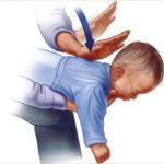 علل و روش های پیشگیری از خفگی