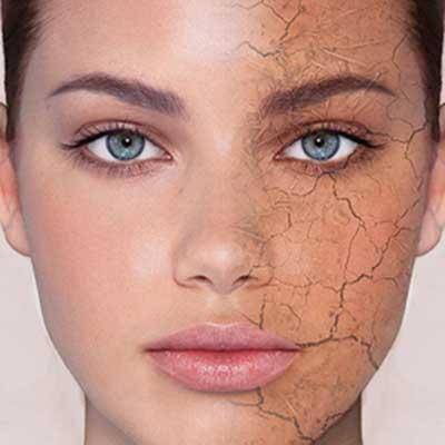 درمان خشکی پوست صورت با مواد غذایی!!