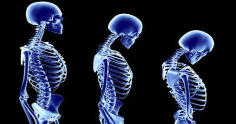با پیشگیری و درمان پوکی استخوان آشنا شوید
