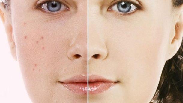 با این روشها جوشهای صورتتان را ریشه کن کنید
