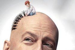 دانستنی های لازم در رابطه با کاشت موی طبیعی