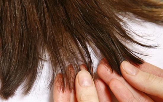 بدون کوتاهی مو موخوره را درمان کنید..!