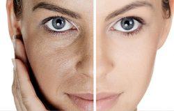 منافذ بزرگ پوست را به کمک این ماسکها از بین ببرید