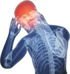 سردرد های شدید