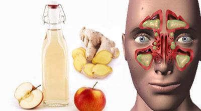 یک درمان طبیعی برای سینوزیت