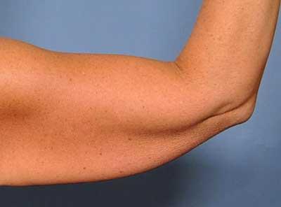 کاهش وزن و مشکل شُل شدن پوست!