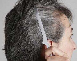 چگونه از زود سفید شدن موهایم جلوگیری کنم؟